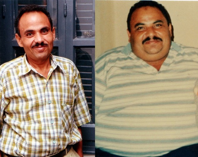 عبد الباسط هو سائق تاكسى عمره 40 عاماوأجريت له الجراحة منذ 6 سنوات وفقد 75 كيلوجراما من وزنه وبأسلوب حياة أكثر صحة وهو يعمل بصورة طبيعية الآن
