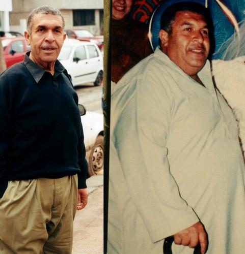 على مخلوف كان سنه 62 عاما وقت إجراء الجراحة له وكان لايتحرك قبل الجراحة نظرا لألام الوزن المبرحه. على مخلوف اليوم وفى سن 68 عاما يعتقد أن الجراحة جعلته أصغر بثلاثين عاما. ( المعتاد أن تجرى هذه الجراحات عند سن 18-55 عاما. أجرينا بحثا على إجراء هذه الجراحات فى أعمار أصغر وأكبر من ذلك (9 سنوات إلى 72 سنة) وبنتائج ممتازة.